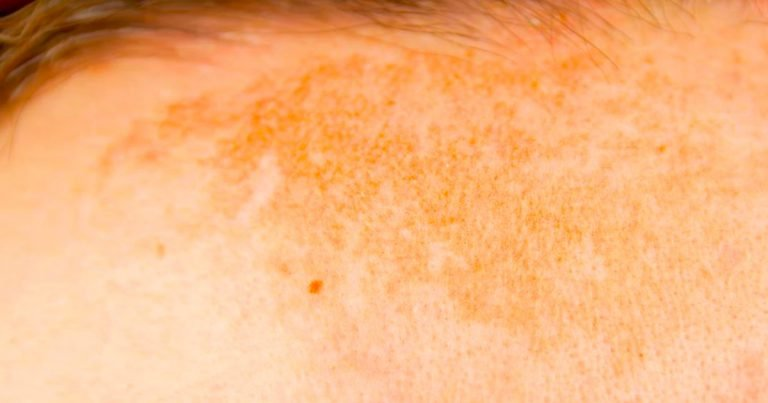 Pigmentation and Sun Damage Treatments in Mackay